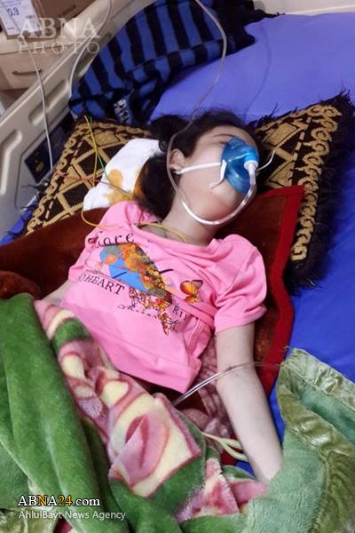 شهادت یک کودک خردسال دیگر در حمله شیمیایی داعش + عکس