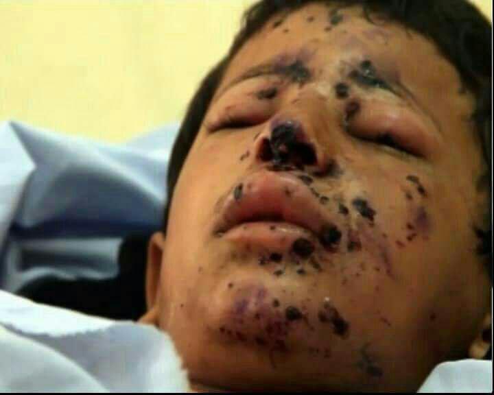 ۲۰۰۰ کودک از آغاز جنگ یمن کشته و زخمی شدهاند
