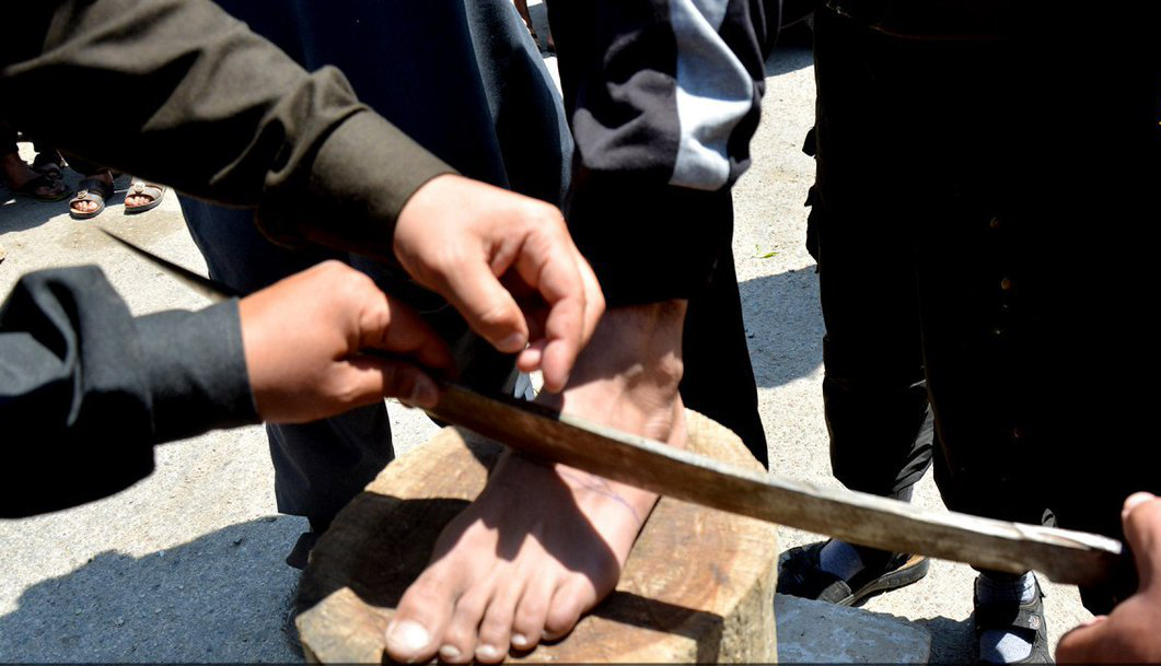 داعش دست و پای یک مرد سوری را قطع کرد + تصاویر