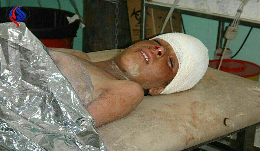 تصاویر و اسامی شهدا و مجروحان تازهترین جنایت عربستان در شمال یمن
