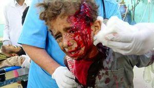 مارک ۸۲ ؛ بمب عروسی و عزا برای کشتار مردم بیدفاع یمن/ نقش مخفیانه یک کشور اروپایی در نسل کشی عربستان و امارات +عکس